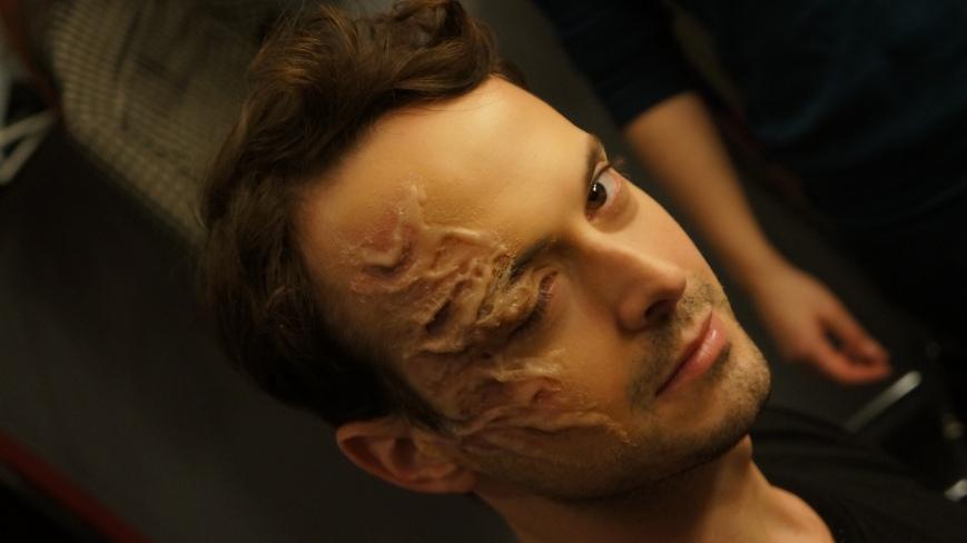 Oliver (Benjamin Dubois) - on appelle ça être défiguré. Maquillage de Véronique St-Germain.